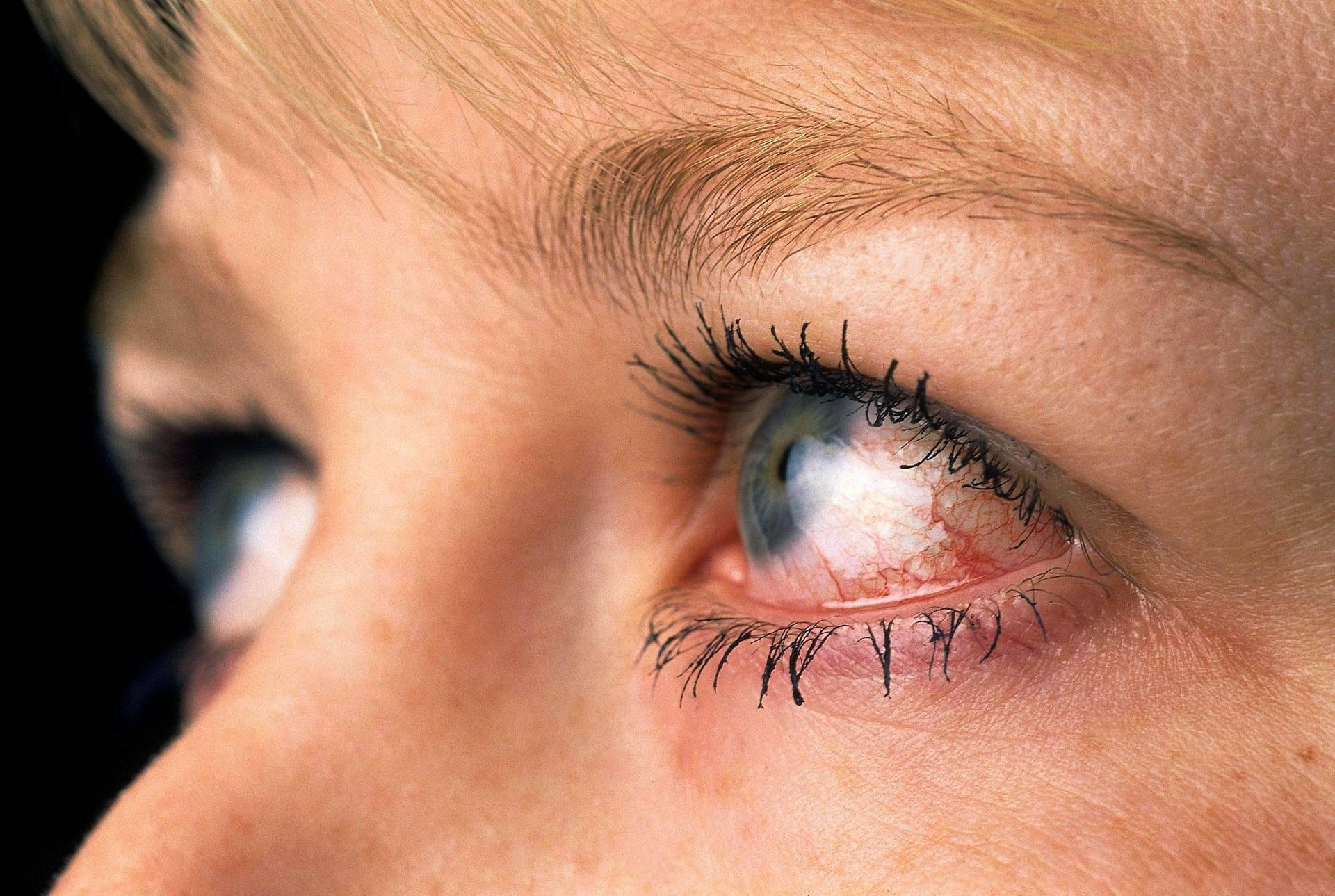 Viruksen Aiheuttama Silmätulehdus