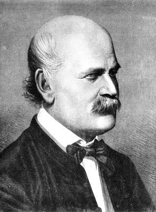 Ingaz Semmelweiss tajusi, että lääkärien pitää pestä kädet.