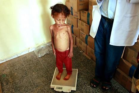 Jemen on maailman köyhimpiä maita. Jemeniläinen Samar Ali Ahmed, kahdeksan vuotta, 9,5 kiloa.