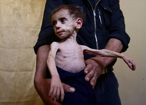 Ilmastonmuutoksen ja konfliktien yhteisvaikutus lisää nälänhätää maailmassa. Vuonna 2017 kuvattu kaksivuotias syyrialainen Hala al-Nufi kärsi aliravitsemuksesta ruokapulan riivaamassa Itä-Ghoutassa Syyriassa. Historiallisen paha kuivuusjakso edelsi Syyrian sisällissotaa, ja sitä pidetään yhtenä sodan syttymissyistä.