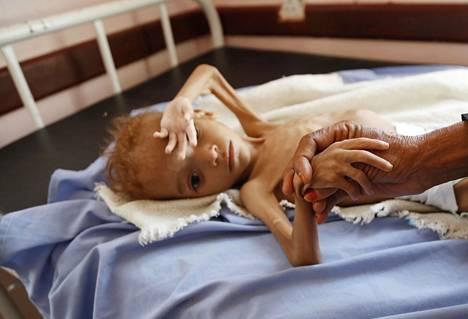 JEMENIN LASTEN HÄTÄ. Jemenissä vuonna 2015 alkanut sisällissota on aiheuttanut edelleen jatkuvia taisteluja eri kapinallisryhmittymien, hallituksen ja ulkovaltojen joukkojen välillä. Kolme miljoonaa jemeniläistä on joutunut pakolaisiksi, ja siviilit ovat joutuneet kärsimään nälänhädästä. Aliravittua lasta hoidettiin sairaalassa Hajjahin maakunnassa lokakuussa 2018.