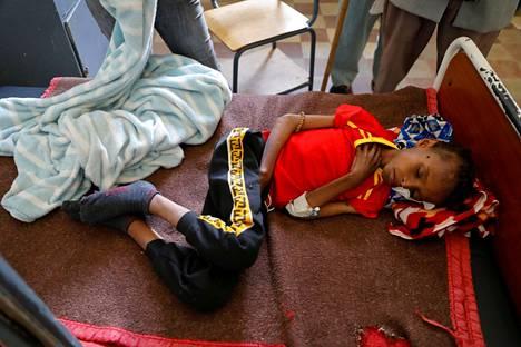 14-vuotias Adan Muez makasi sairaalan sängyllä Adigratin kaupungissa Etiopian Tigrayssa maaliskuussa.