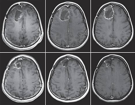 Aivojen magneettikuvista nähdään, kuinka potilaan aivoissa glioblastooma-kasvain ensin suurenee (ylärivi vasemmalta oikealle). Sitten syöpäkasvaimeen ruiskutettiin muunneltua poliovirusta, ja kasvain lähti pienenemään. Alhaalla vasemmalla kasvain vuoden jälkeen ruiskutuksesta, keskellä kahden vuoden päästä ja oikealla liki viiden vuoden päästä.