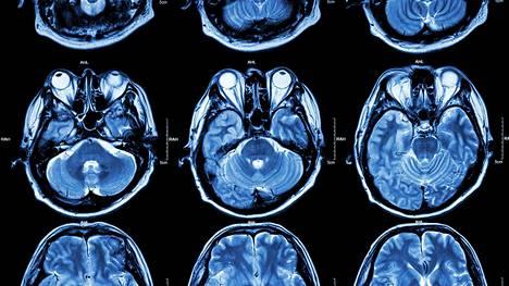 Heikko sähkövirta voi nuorentaa aivoja väliaikaisesti.