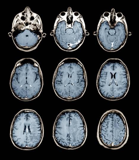 Magneettikuvia terveistä aivoista. Rakenteet näkyvät gadoliniumpohjaisen tehosteaineen ansiosta.