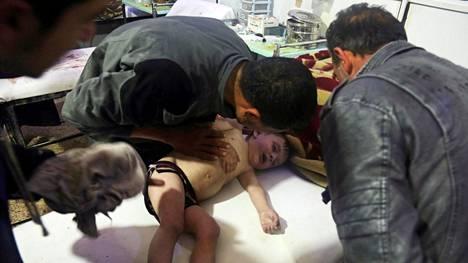 Lasta hoidettiin sairaalassa epäillyn kemikaali-iskun jälkeen Dumassa Syyriassa 7. huhtikuuta.