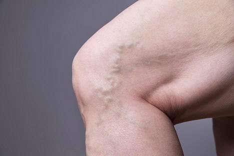 Suonikohjut voivat olla oireettomia mutta ikävännäköisiä suonirykelmiä.