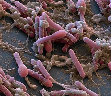 Clostridium botulinum -bakteeri elektronimikroskoopin kuvassa, joka on väritetty. Bakteeri tuottaa erittäin voimakasta hermomyrkkyä.