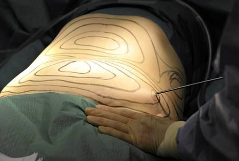 Kirurgi tekemässä rasvaimua.