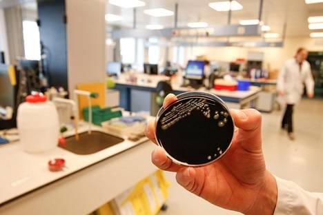 Sairastumisien tutkinta alkoi toukokuun alussa. Legionella pneumophila -bakteeriviljelmä kuvattiin Gentin yliopistollisessa sairaalassa toukokuun puolivälissä.