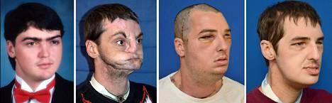 37-vuotias Richard Lee Norris ennen 1997 sattunutta ampumatapaturmaa ja leikkausten jälkeen. Hän menetti tapaturmassa ylä- ja alaleukansa, huulensa ja nenänsä ja sai ne takaisin täydessä kasvojensiirrossa vuosi sitten.