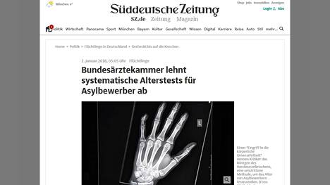 Ikätestit perustuvat tyypillisesti luiden röngentutkimuksiin. Kuvakaappaus sanomalehti Süddeutsche Zeitungin verkkosivuilta.