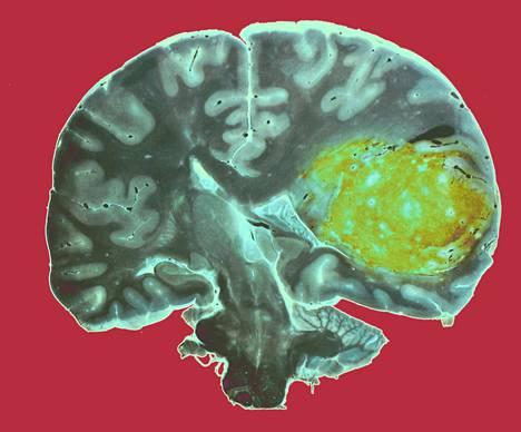 Glioblastooma on aivojen tukikudosten aggressiivinen kasvain. Se erottuu värjätyssä kuvassa keltaisena.