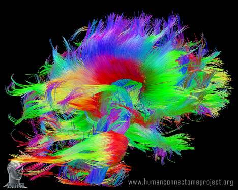 Aivotutkijat kokoavat tarkinta karttaa ihmisen aivoista Connectome-hankkeessa. Kuva näyttää, miten aivojen hermoverkko risteää ja kulkee aivojen eri osiin. (Image Courtesy of the Laboratory of Neuro Imaging at UCLA and Martinos Center for Biomedical Imaging at MGH, Consortium of the Human Connectome Project)