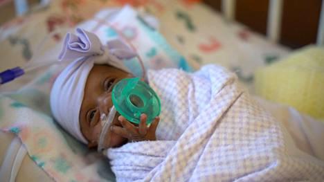 Saybie-vauva painaa nyt viisikuisena saman verran kuin suurimmat keskoseksi luokiteltavat vastasyntyneet.