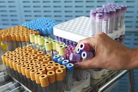 Tutkijat ovat kehittäneet uuden, entistä tarkemman virustestin.