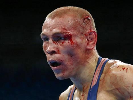 Vladimir Nikitin ei näyttänyt voittajalta Michael Conlanin käsittelyn jälkeen.