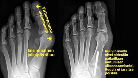 Jos isovarpaan tyvinivel on säilyttänyt joustavuutensa, vaivaisenluu voidaan hoitaa asentamalla jalkapöytäluu takaisin oikeaan asentoon. Silloin kyhmykin häviää.