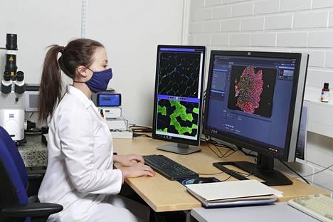 Hanna-Kaarina Juppi tutkii naisten vaihdevuosien vaikutusta lihaksistoon.