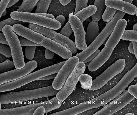 Escherichia coli -bakteeri elektronimikroskoopin kuvassa. Suolistossa majaansa pitävä kolibakteeri lienee tutkituin ja tunnetuin bakteeri.