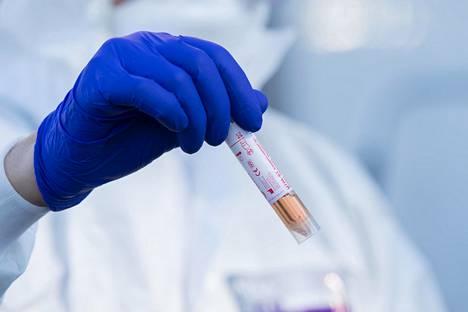 Varsinainen koronavirustesti (kuvassa) tehdään laboratoriossa hengitystie-eritenäytteestä. Suomessa pääsiäisen jälkeen alkavilla vasta-ainetesteillä pystytään löytämään nekin henkilöt, jotka ovat selvinneet tartunnasta oireetta.
