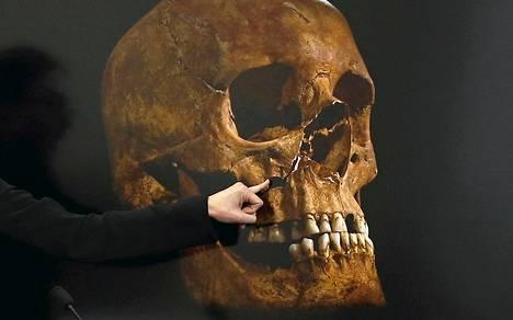 Luututkija Jo Appleby osoittaa kuningas Richard III:n kallossa kohtaa, johon kuolettava isku osui.