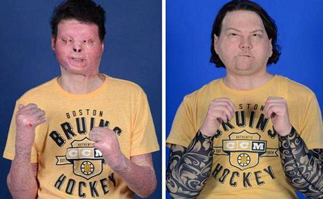 Joe DiMeo ennen ja jälkeen elokuussa toteutetun leikkauksensa.