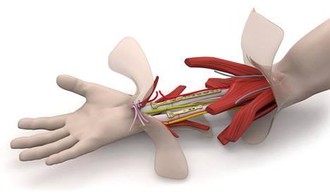 Ensin yhdistetään luut ja sitten verisuonet, lopuksi lihakset, jänteet, hermot ja iho.