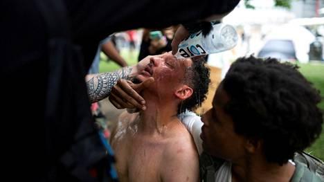 Miehen silmiä huuhdeltiin vedessä Minneapolisin mielenosoituksen yhteydessä perjantaina.
