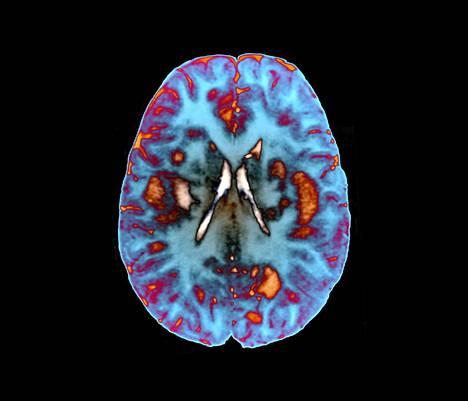 Magneettikuva 56-vuotiaan adem-potilaan aivoista.
