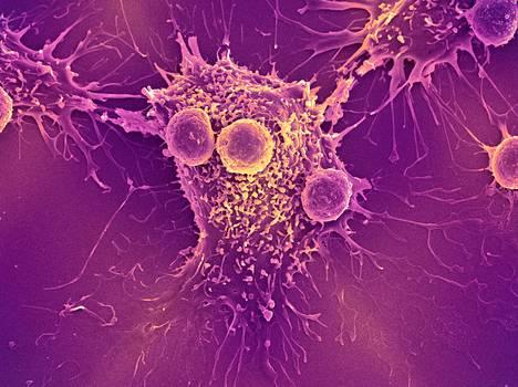Elimistön puolustuksen T-solut näkyvät pyöreinä syöpäsolun ympärillä.