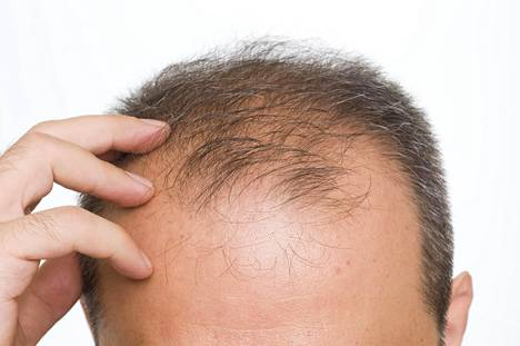 Hiusten lähtö voi olla arka paikka.