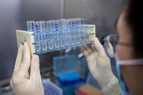 Työntekijä tekee laadunvalvontaa koronavirusrokotetta kehittävän kiinalaisen Sinovac Biotechin laboratoriossa Pekingissä.