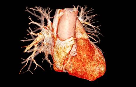 3D-mallinnos ihmisen sydämestä esittää sydämen oikealta puolelta nähtynä: oikean kammion, eteisen valtimot ja laskimot sekä aortan.