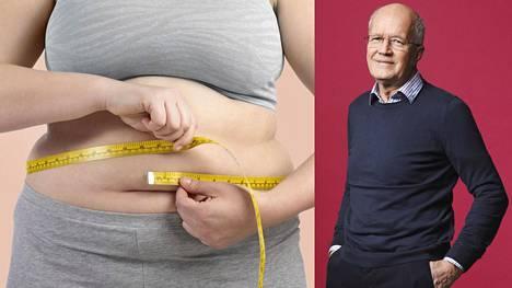 Painonhallinta | Suomessa on jo niin paljon ylipainoisia, että normaalipainoiset ovat vähemmistössä – Nämä maailmalla kokeillut järeät toimeet tulisi ottaa heti käyttöön, sanoo lihavuuslääkäri