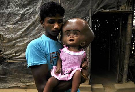 Hydrokefaliasta kärsivä Roona Begum isänsä sylissä.