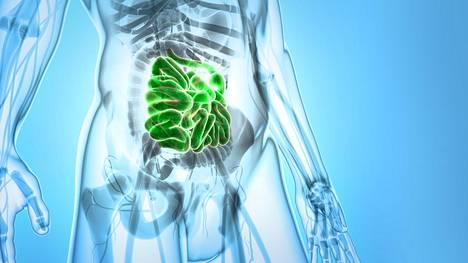 Tutkijaryhmä tunnisti 11 suolistobakteerikantaa, jotka aktivoivat immuunijärjestelmää ja hidastivat melanooman kasvua.