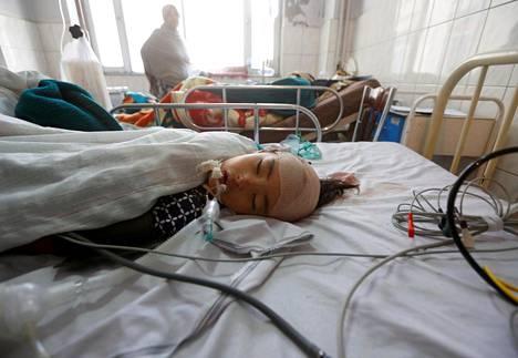 Asemiehen hyökkäyksessä rukoushuoneeseen loukkaantunut tyttö makaa kabulilaisessa sairaalassa Afganistanissa.