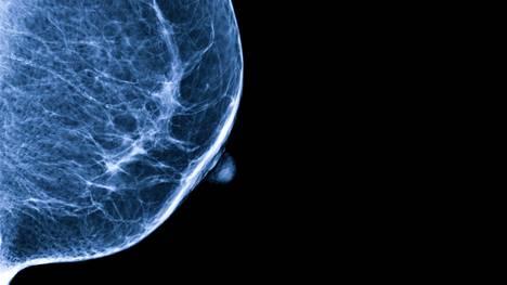 Vahvasti perinnöllistä rintasyöpää voi ehkäistä leikkaamalla rinnat pois jo ennalta.