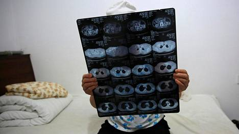 Kiinalainen syöpäpotilas tutkii kehosta otettuja kuvia sairaalassa Pekingissä. Kuva ei liity tutkimukseen, josta puhutaan artikkelissa.