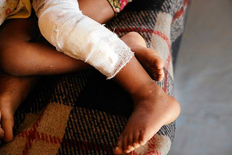 Tutkijat spekuloivat, että muutos suolistobakteeristossa johtuu palovamman aiheuttamasta tulehdusreaktiosta.