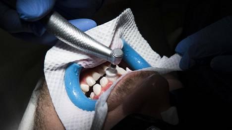 Janne Petran hampaiden valkaisussa on menossa viimeistely.