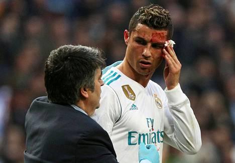 Ronaldo sai sunnuntaina Santiago Bernabeulla hoitoa haaveriinsa.