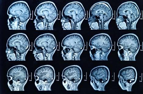 Ainakin mantelitumakkeet ja hippokampukset ovat samanlaisia miehillä ja naisilla.