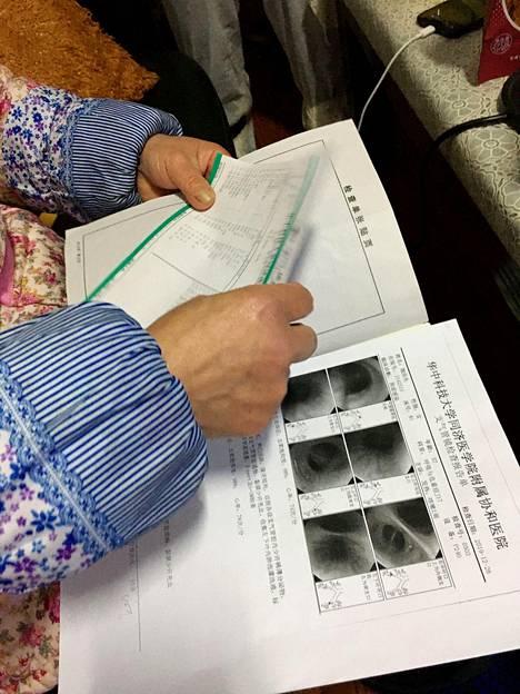Hua'nanin kalatorilla työskennellyt ja koronavirukseen sairastunut Wei Guixian kävi läpi sairaskertomustaan.