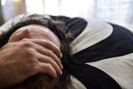 Unilääkäri Henri Tuomilehdon mukaan suurin haaste uniapnean kohdalla on sairauden tunnistaminen.