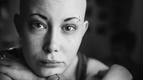 Jonna Kalavaisen tukka ja ripset putosivat ensimmäisen leikkauksen ja sytostaattihoidon jälkeen.