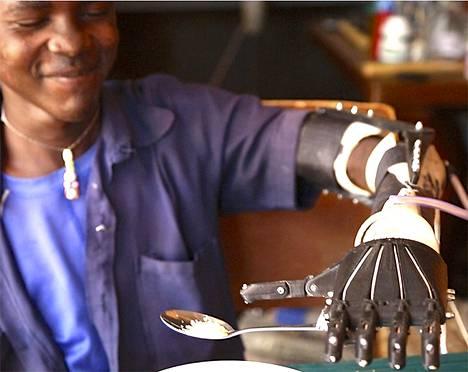 Daniel Omar sai uuden käden 3D-tulostuksen avulla.