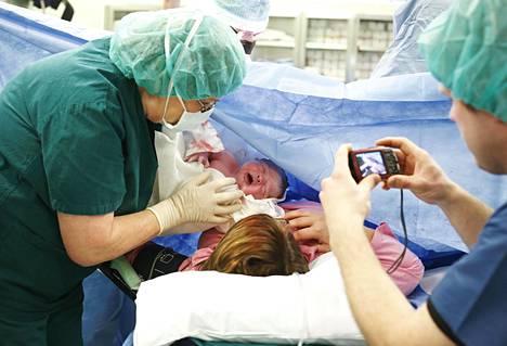 Sektiolla syntynyt vauva.