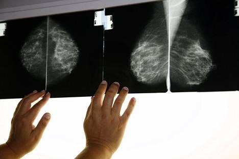 Mammografiatutkimuksen röntgenkuvia.